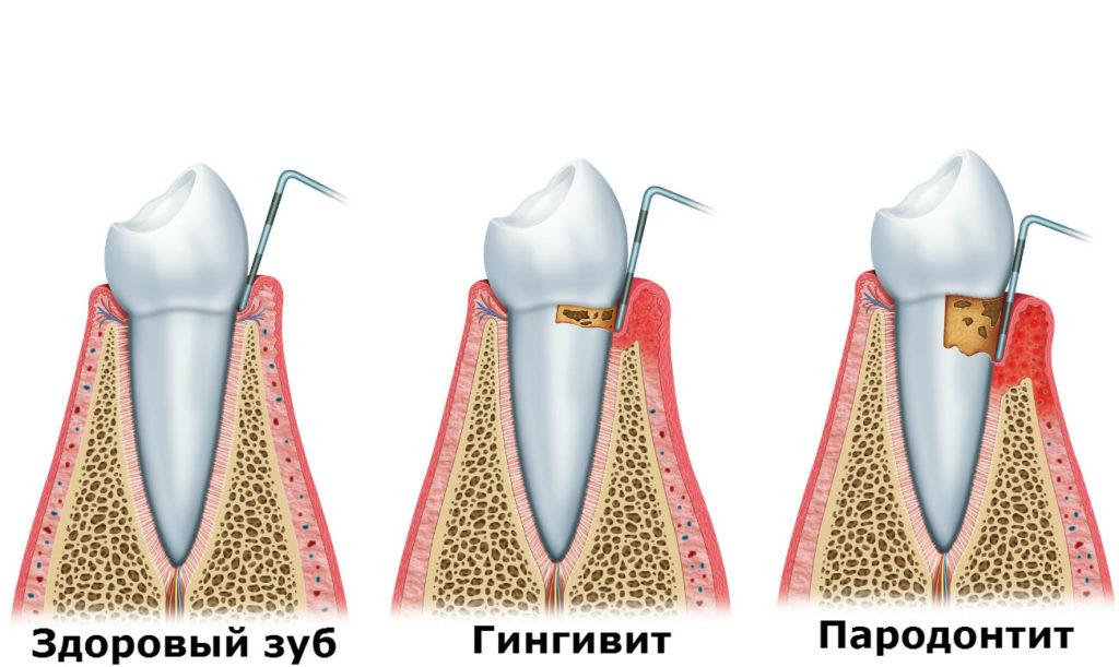 Здоровый зуб и пародонтит.