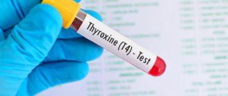 Анализ на гормон Т4 общий.
